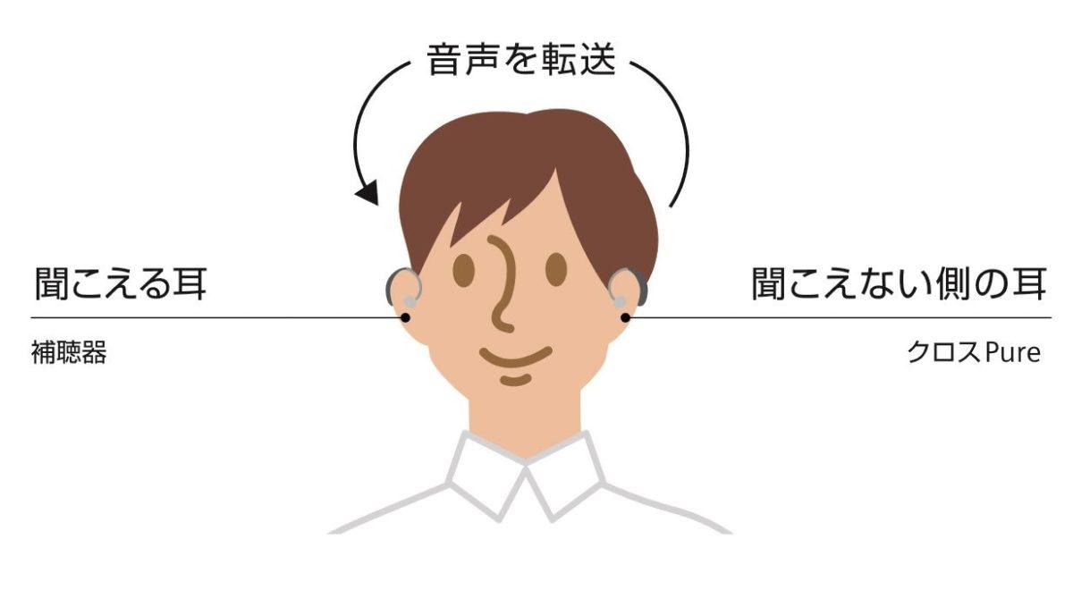クロス補聴システムの説明