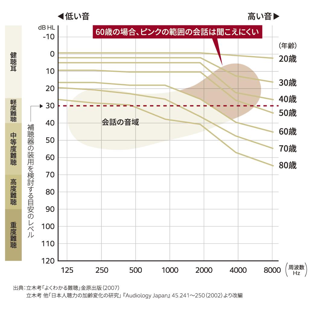 年齢別平均聴力図
